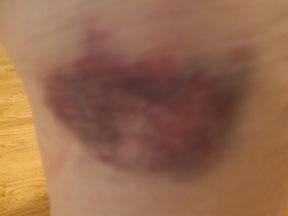 Bruise_2